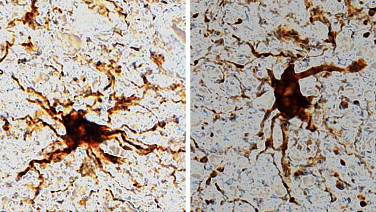 Tak wyglądają komórki glejowe, które rosną w tkankach mózgowych po śmierci /materiały prasowe