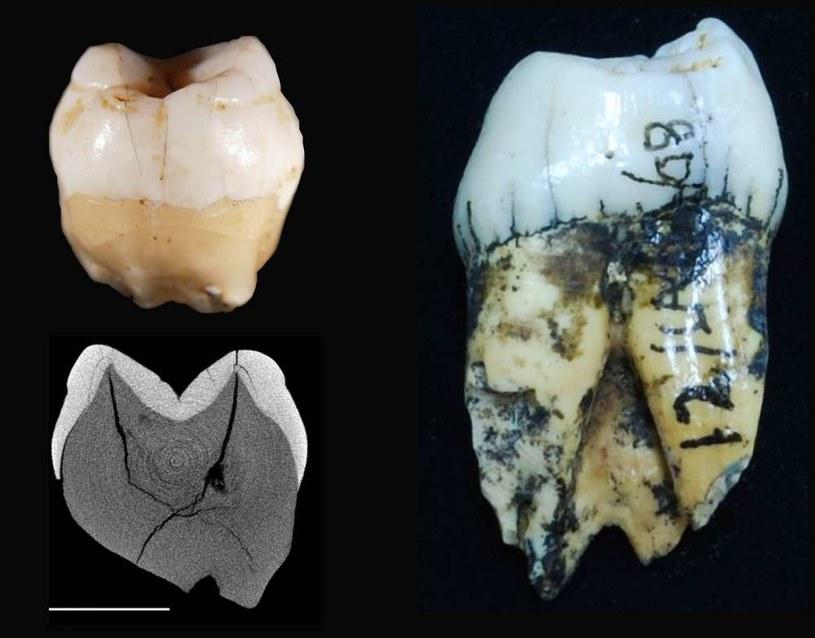 Tak wyglądają zęby odnalezione na Sumatrze /materiały prasowe