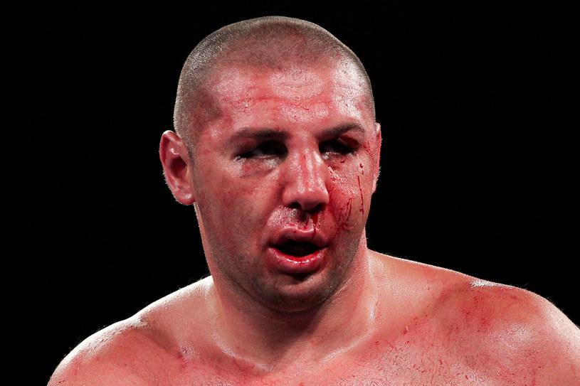 Tak wyglądał pobity Magomied Abdusałamow w walce z Mikiem Perezem /Getty Images