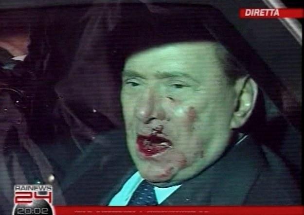 Tak wyglądał Silvio Berlusconi tuż po wczorajszym ataku /AFP