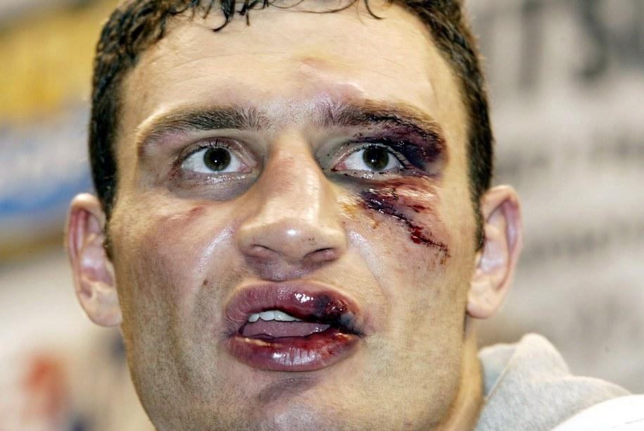Tak wyglądał Witalij Kliczko po walce z Lewisem /BRENDAN MCDERMID /PAP/EPA