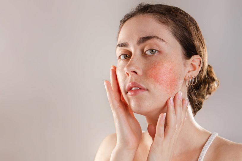 Taką skórę można łatwo podrażnić, dlatego tak ważny jest umiar w pielęgnacji /123RF/PICSEL