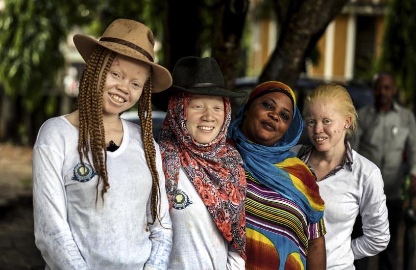 Tanzańscy albinosi /AFP