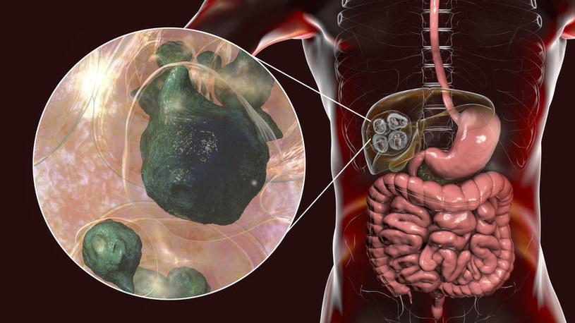 Tasiemczyca a narządy /©123RF/PICSEL