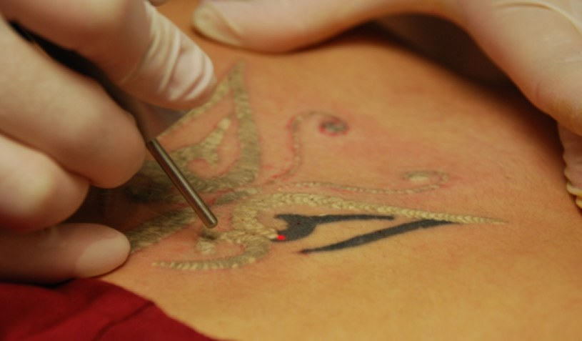 """""""Tatuaże nie tylko uczulają, ale potrafią ujawniać utajone alergie"""" / zdj. ilustracyjne /INTERIA.PL/materiały prasowe"""