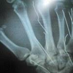 Te czujniki pomogą w naprawie kości