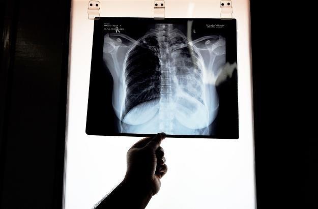Telemedycyna to krótsze kolejki do lekarzy /AFP