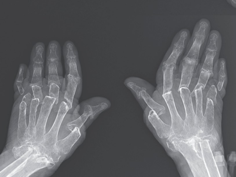 Teleskopowe palce to rzadkie schorzenie /materiały prasowe