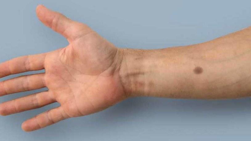 Ten implant może wykryć obecność komórek nowotworowych /fot. ETH Zurich /materiały prasowe