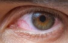 Ten sposób dezynfekcji koronawirusa może popsuć wzrok