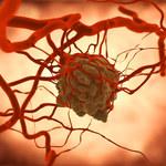 Ten test krwi wykryje aż 50 rodzajów nowotworów