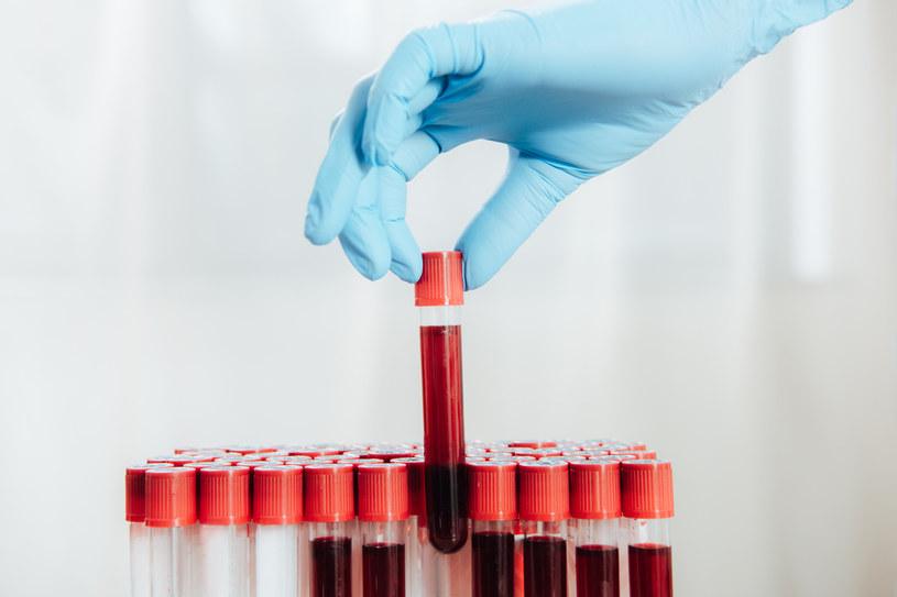 Ten test może zmienić sposób walki z nowotworami /123RF/PICSEL