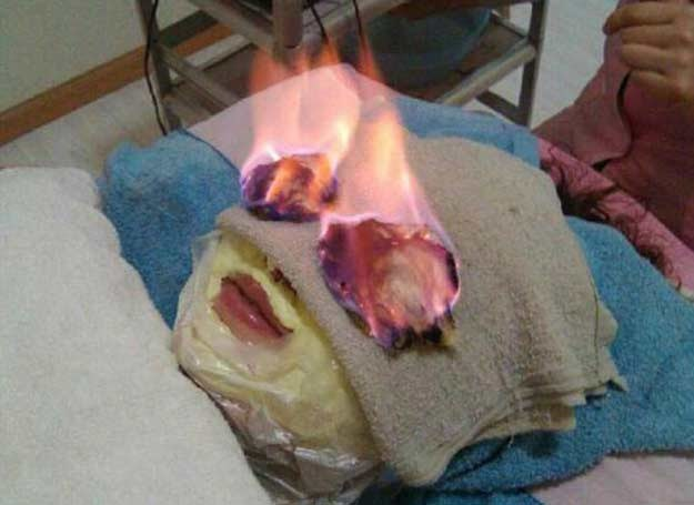 Terapia ogniem, źródło: Youtube /INTERIA.PL