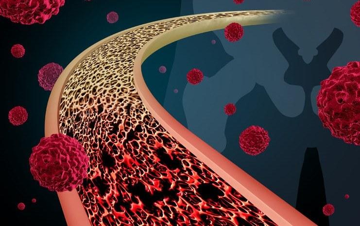 Termoablacja ultradźwiękowa pozwala zmniejszyć ból u chorych na raka kości /123RF/PICSEL