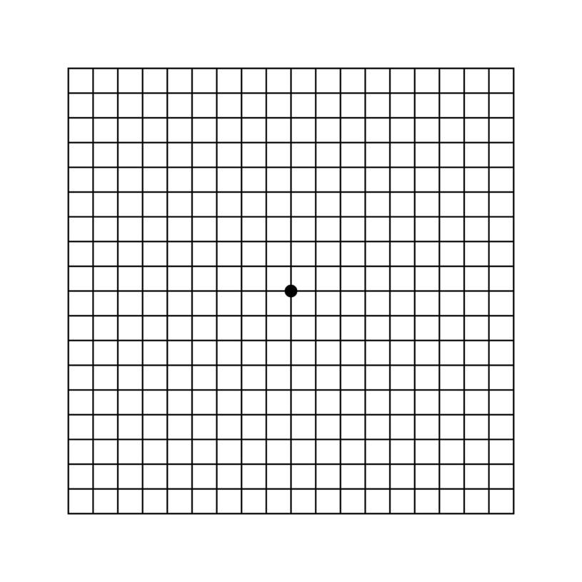 Test Amslera /123RF/PICSEL