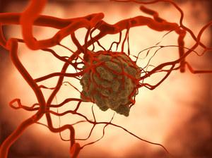 Test, który wykryje raka na kilka lat przed jego powstaniem