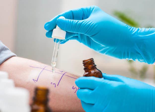 Testy alergologiczne dostarczą ci potrzebnych odpowiedzi /123RF/PICSEL