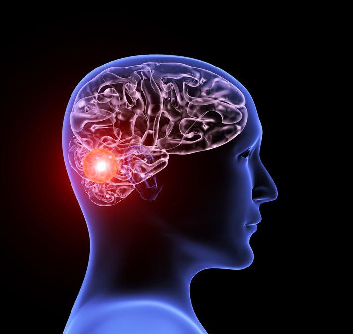 Tętniak w mózgu /©123RF/PICSEL