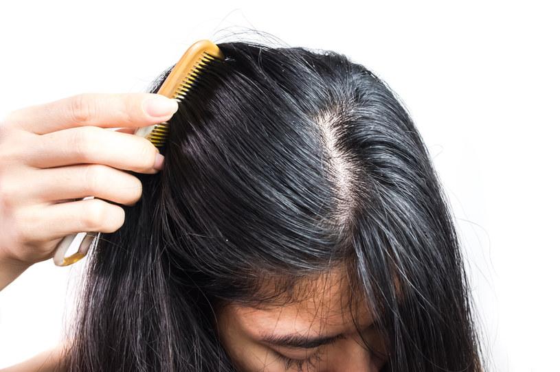 Tłuste włosy to częsty problem /123RF/PICSEL