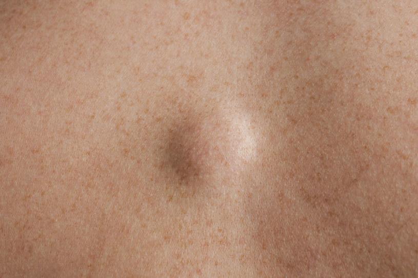 Tłuszczaki a zdrowie /©123RF/PICSEL