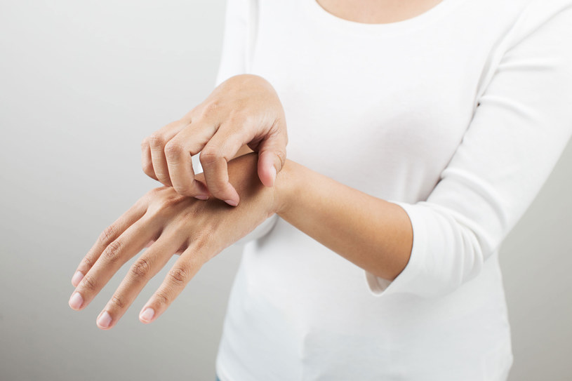 To może być objaw choroby skóry /Picsel /123RF/PICSEL