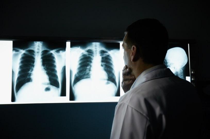 To niezwykle rzadkie, ale z przeszczepianym narządem można otrzymać także alergie /123RF/PICSEL