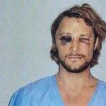 To on pobił byłego Halle Berry - wygląda na samca alfa?