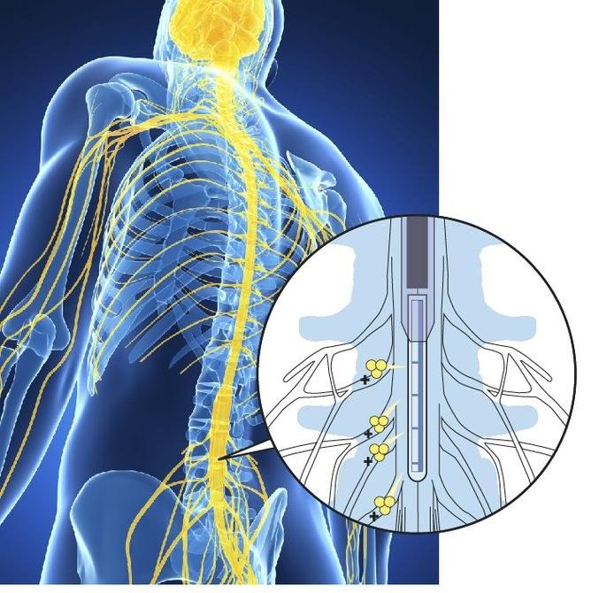 To urządzenie blokuje sygnały bólu zanim dotrą one do mózgu /materiały prasowe