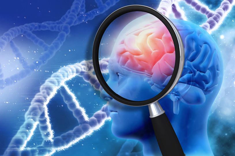 To zaskakujące odkrycie, ale starzenie mózgu można cofnąć /123RF/PICSEL