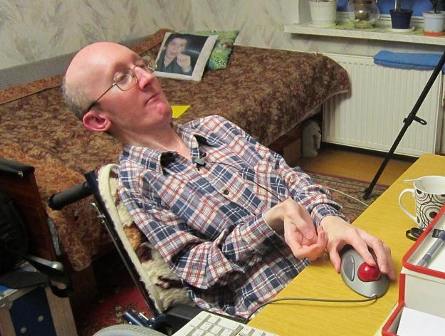 Tomasz Przybysz choruje na fibrodysplazję /INTERIA.PL