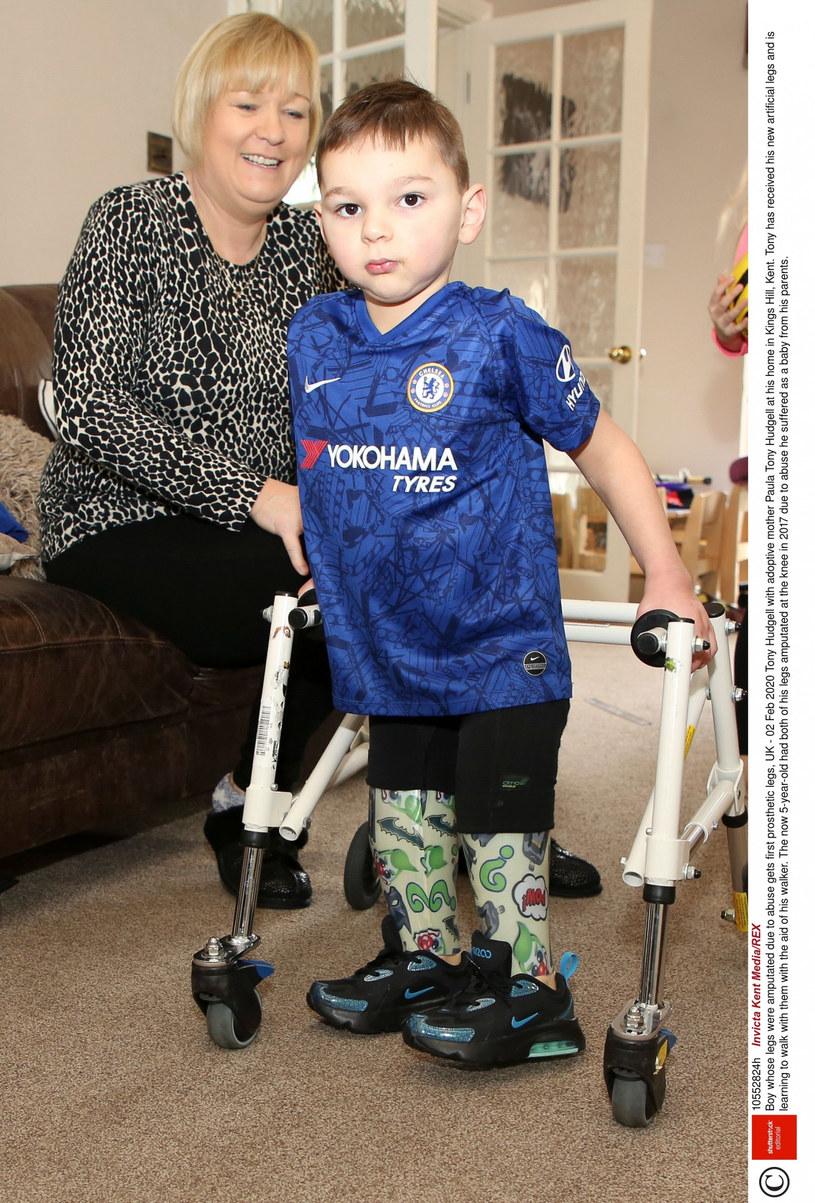 Tony Hudgell z mamą adopcyjną - Paulą Boy /East News