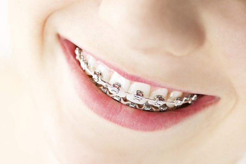 Tradycyjne aparaty ortodontyczne z metalowymi zamkami to nie jedyna metoda na idealnie proste zęby /123RF/PICSEL