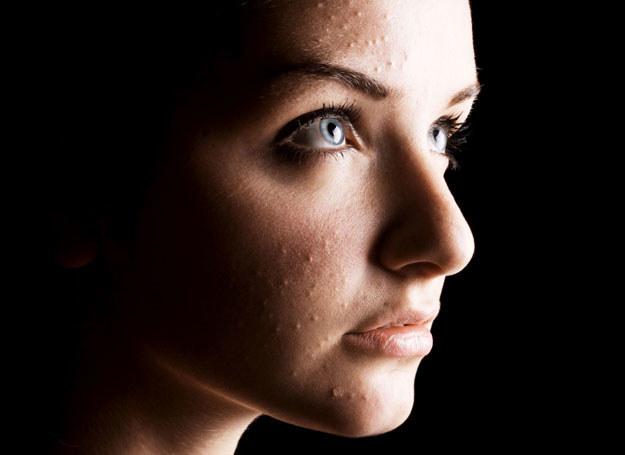 Trądzik może być wynik problemów hormonalnych /123RF/PICSEL