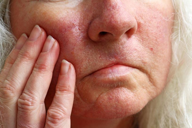 Trądzik różowaty to coraz powszechniejsza choroba skóry /123RF/PICSEL