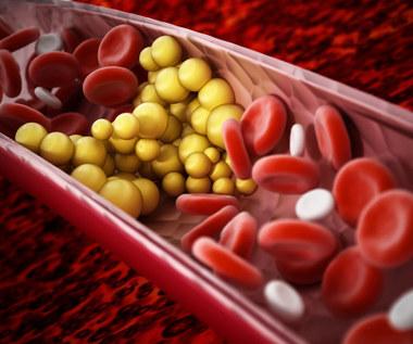 Trójglicerydy: Przyczyny zbyt wysokiego poziomu i dieta