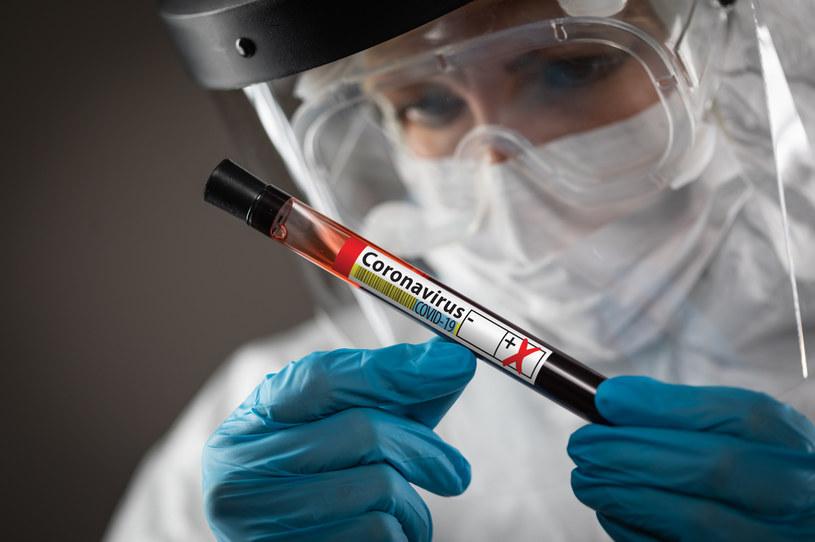 Trwają prace nad szczepionką na SARS-CoV-2 /123RF/PICSEL