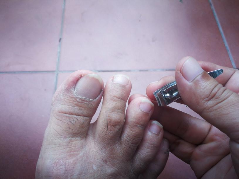 Trzeba właściwie obcinać paznokcie i nosić obuwie o szerokich noskach /123RF/PICSEL