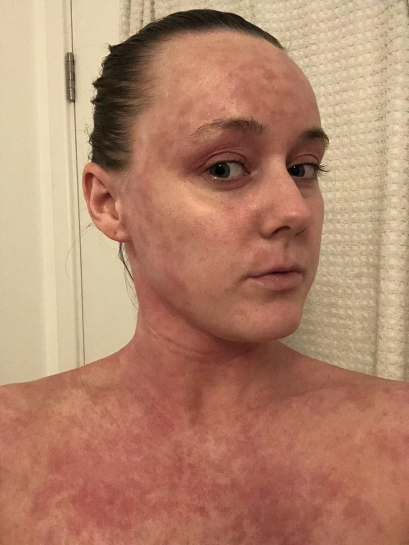 TSW czyli miejscowe odstawienie sterydów, jest spowodowane skutkami ubocznymi kortykosteroidów /Jam Press/@bee.thebrave / SplashNews.com /East News/ Zeppelin