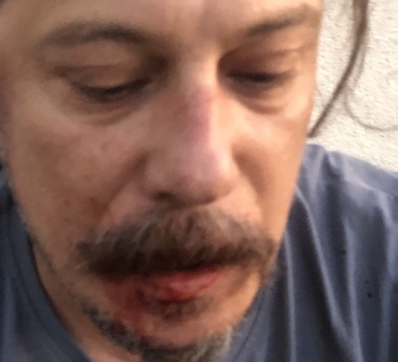 Turecki dziennikarz podał, że zaatakowali go pięściami i nożami trzej sprawcy /Twitter.com/Erk Acarer /