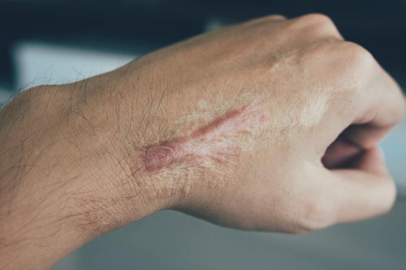 Tworzeniu się nieprawidłowej blizny najlepiej jest zapobiegać. Leczenie jest trudne i kosztowne /123RF/PICSEL