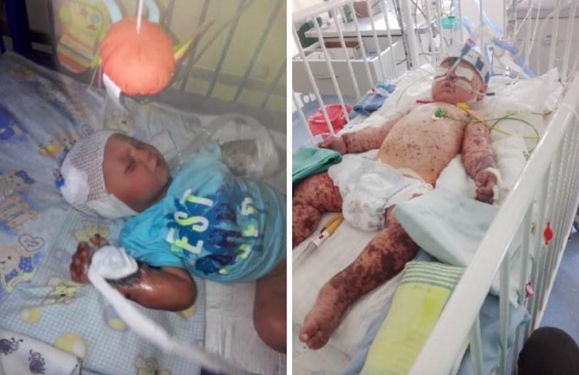 Tylko dzięki szybkiej pomocy lekarzy chłopiec przeżył /Fundacja Instytutu Matki i Dziecka /YouTube