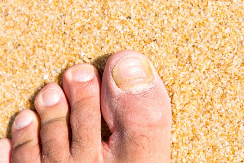 Typowym objawem grzybicy są zażółcone paznokcie /123RF/PICSEL