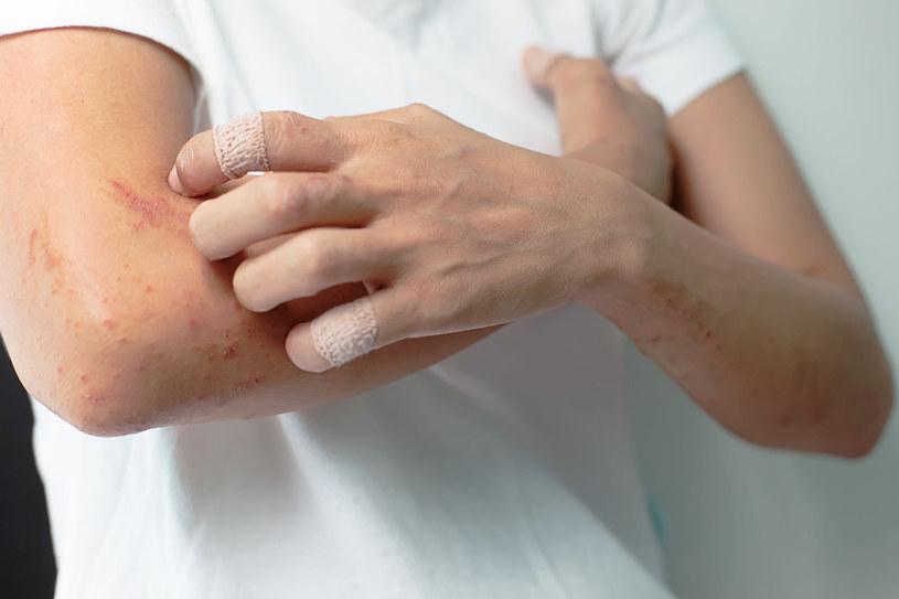 U dorosłych choroba może dawać objawy zarówno ze strony skóry (wysypka, obrzęki, atopowe zapalenie skóry), jak układu pokarmowego. Może być też przyczyną zespołu przewlekłego zmęczenia, zaburzeń snu, obrzęków dłoni, stóp lub stawów /123RF/PICSEL