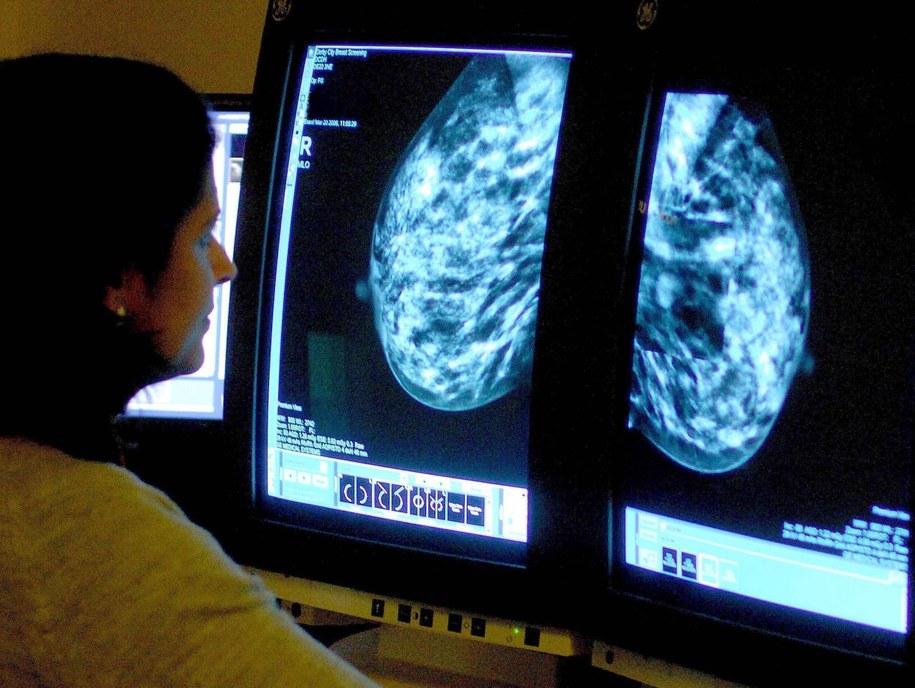 U kobiet najczęściej występującym nowotworem od wielu lat jest rak piersi /Rui Vieira    /PAP/EPA