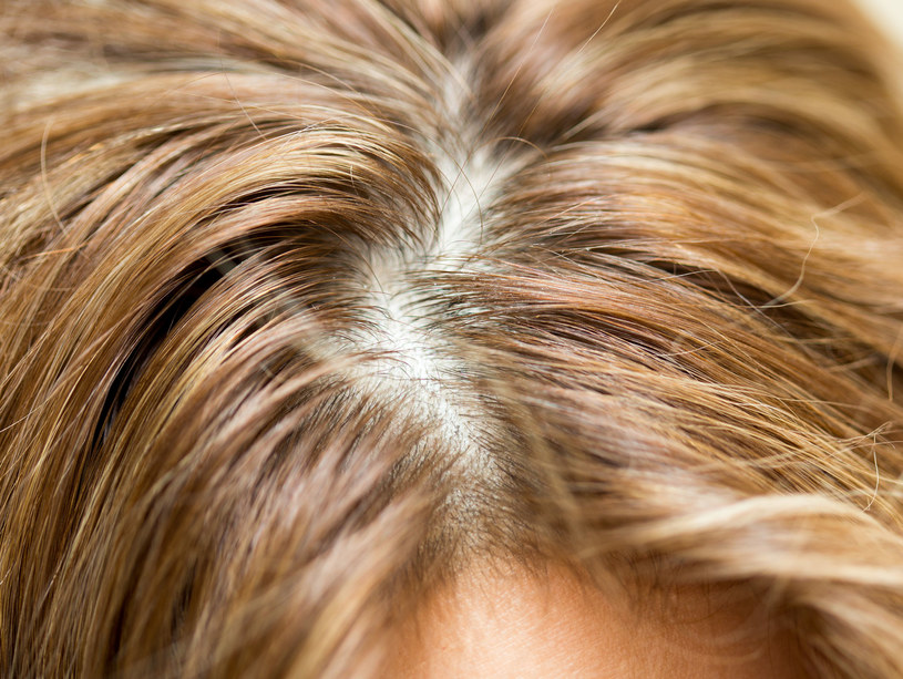 U osób dotkniętych łysieniem często występuje wysoki poziom cukru we krwi. Jeśli więc masz ochotę na coś słodkiego, sięgnij raczej po owoce (świeże lub suszone) zamiast po czekoladkę /123RF/PICSEL