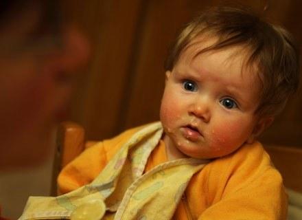 U wielu dzieci alergia długo pozostaje nie rozpoznana /ThetaXstock