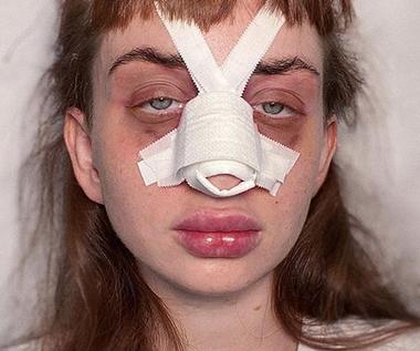 """Uczestniczka """"Hotelu Paradise"""" przeszła operację plastyczną nosa?"""