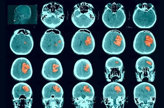 Udar mózgu i rak jajników są ze sobą powiązane /123RF/PICSEL