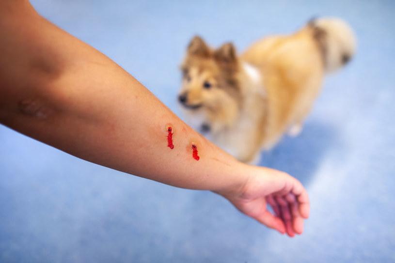 Ugryzienie przez psa /©123RF/PICSEL