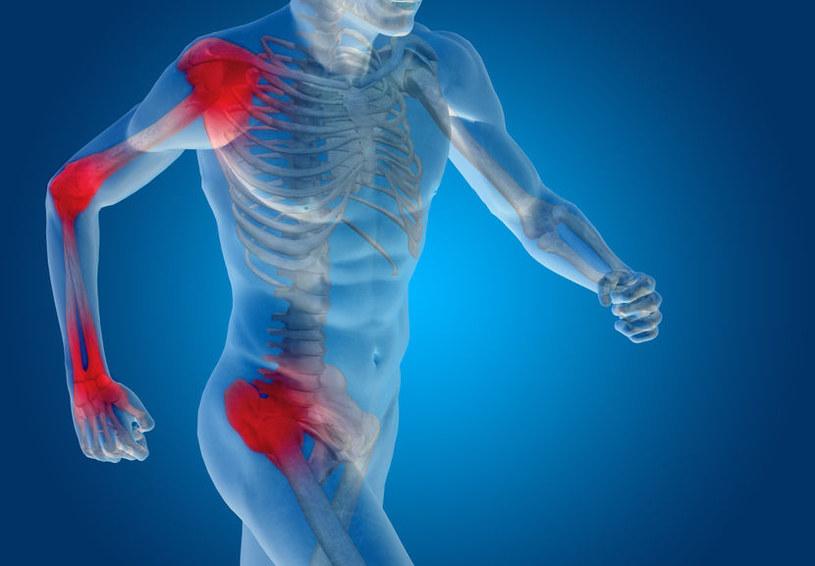 Układ odpornościowy atakuje tkanki miękkie /123RF/PICSEL